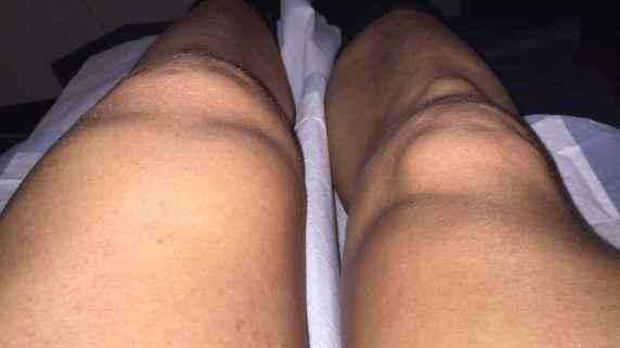 riewoldt knee 1